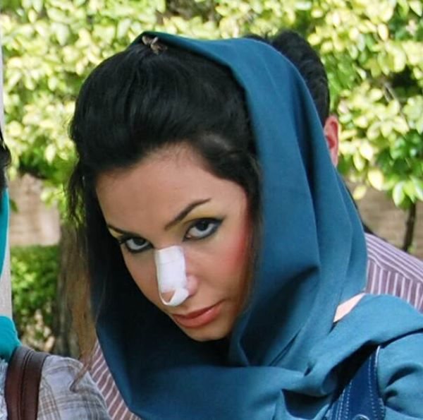 Iranian women can't show their bodies but they make sure their noses are gorgeous.
